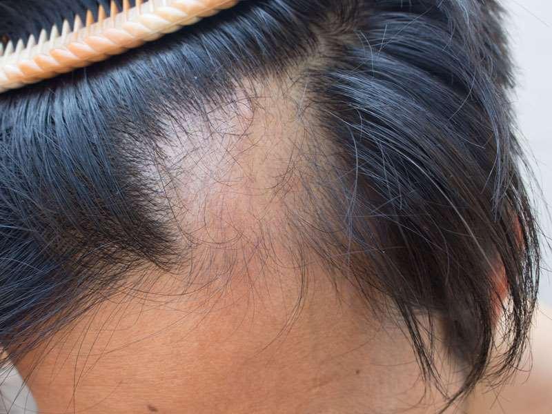 Alopecia Areata Hair Loss Treatment Hair Replacement Maryland