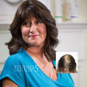 womens hair loss solutions mechanicsville baltimore maryland