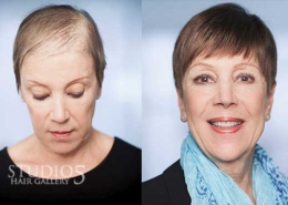 Women's Hair Replacement