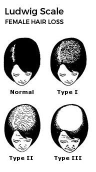 Ludwig Scale: Female Hair Loss Treatment Baltimore Washington Arlington Patuxent River