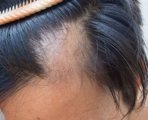 maryland alopecia areata hair loss treatment