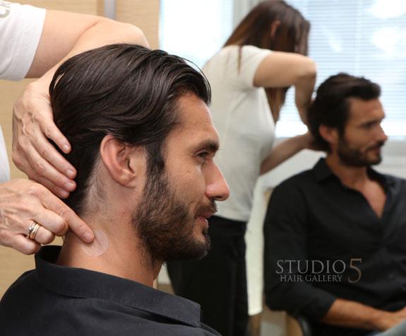 trichology hair loss treatment baltimore arlington anapolis md