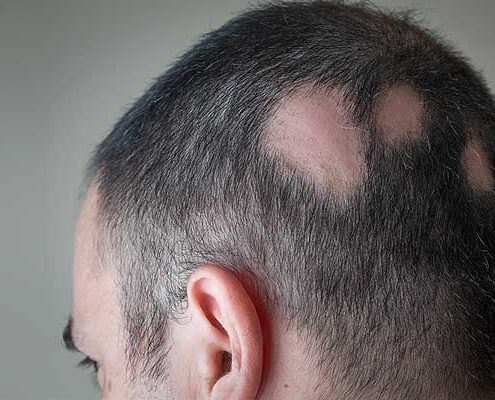 Alopecia Areata Hair Loss