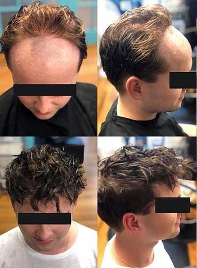Non-Surgical Male Hair Replacement - Baltimore, Maryland